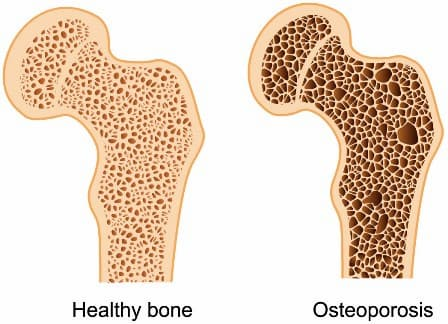 the bone density solution pros